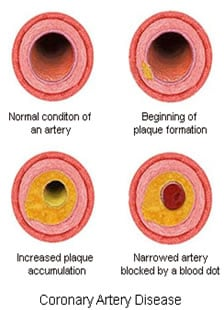 Prevent a Second Heart Attack By Preventing Plaque Growth.