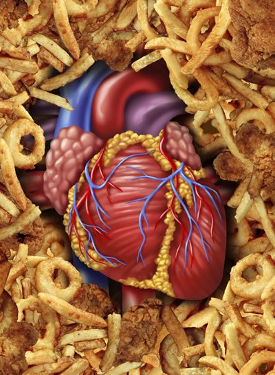 Reducing these fats in your diet. will help prevent a second heart attack.