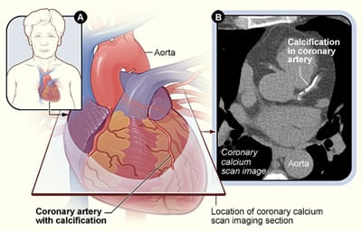 "A Calcium Scoring CT Scan may help you know if you have heart disease. (photo courtesy of National Heart, Lung, and Blood Institute <a href=""http://www.nhlbi.nih.gov/health/health-topics/topics/cscan"" target=""_blank"">nih.gov</a>)"
