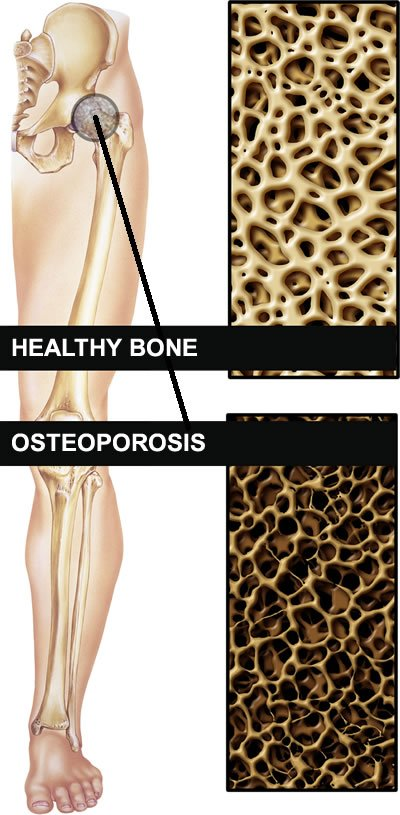 How To Strengthen Bones Naturally
